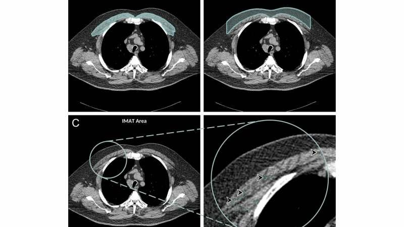 Chest CT illuminates mortality risk in people with COPD