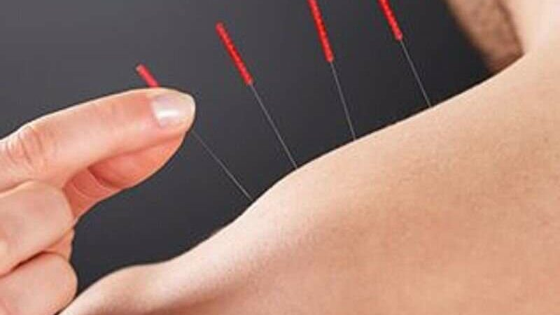 Acupuncture effective for chronic muscular pain in cancer survivors